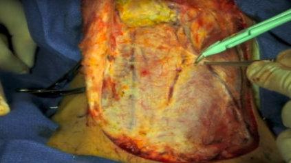 Linfadenectomía cervical