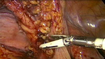Sigmoiectomía