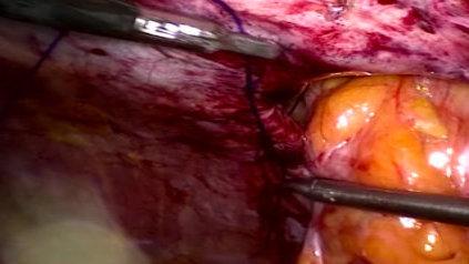 Cirugía de hernia