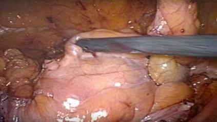 Cistectomía