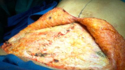 Lipectomía abdominal